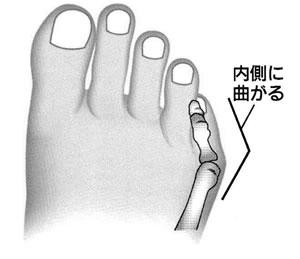 内反小趾2