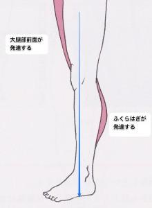 反張膝との違い