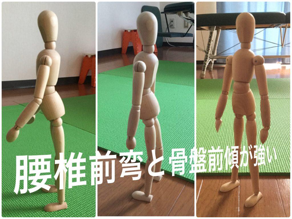 腰椎前弯、骨盤前傾