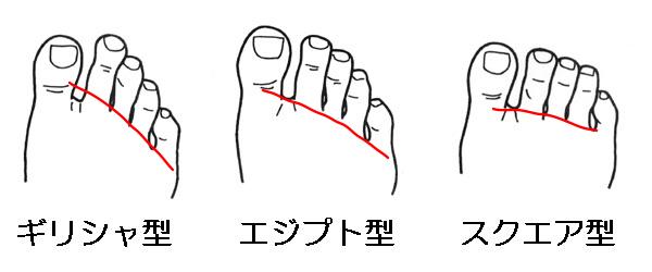 足ゆびの傾斜